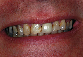 reeves smile case before