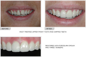Before and After photos porcelain crowns
