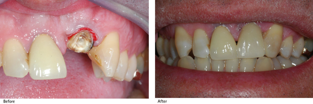 Fibre Reinforced Composite Before and After