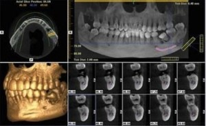 dental implant clinic implant cone beam ct scan image